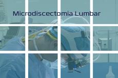 Procedimiento quirúrgico de radiculopatía lumbar